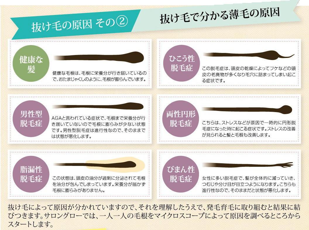 抜け毛の原因2