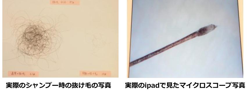 実際のシャンプー時の抜け毛の写真・実際のipadで見たマイクロスコープ写真